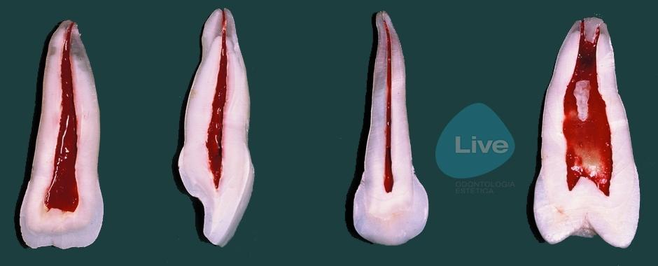 Endodotia